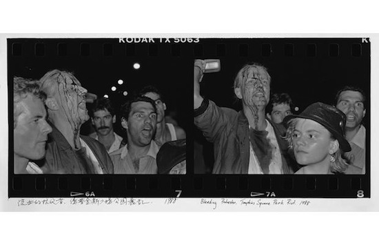 Bleeding Protestor. Tompkins Square Park Riots, 1988. Courtesy of the artist, Three Shadows Photography Art Center, and Chambers Fine Art.